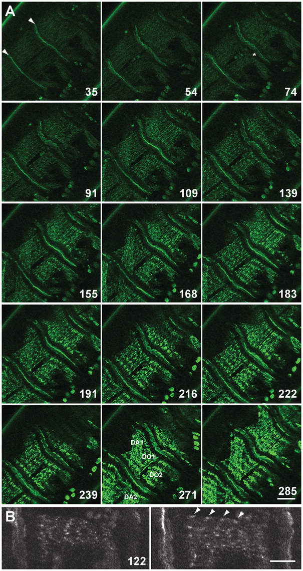 Live imaging of G00189 (GFP-Zasp52) during myofibril assembly of embryonic body wall muscles.