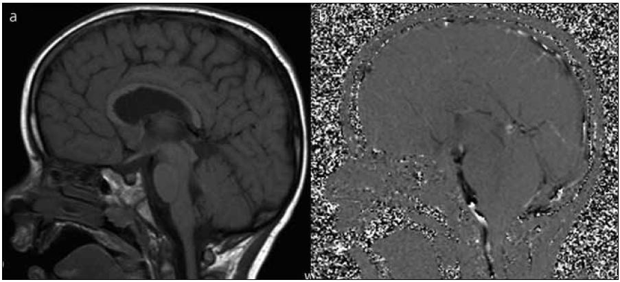 Před- a pooperační MR vyšetření u pacienta s provedením EVS a zrušením V-P drenáže. Obr. 1a) Předoperační MR mozku s patrnou obliterací mokovodu. Obr. 1b) Pooperační 2D fázový kontrast s průkazem průtoku přes spodinu třetí komory).