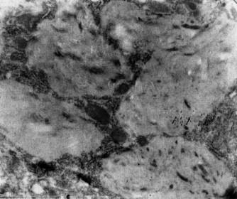 Intracytoplazmatická rezidua po roztrávení intracelulárních bakterií makrofágy v mozku u téhož případu WD.
