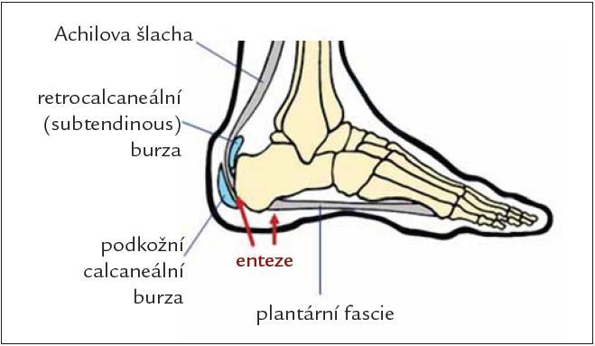 Entezitidy v oblasti patní kosti.