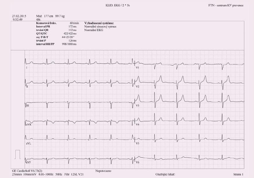 Obr. 1b. EKG po čtyřech měsících antihypertenzní terapie (Panel B)
