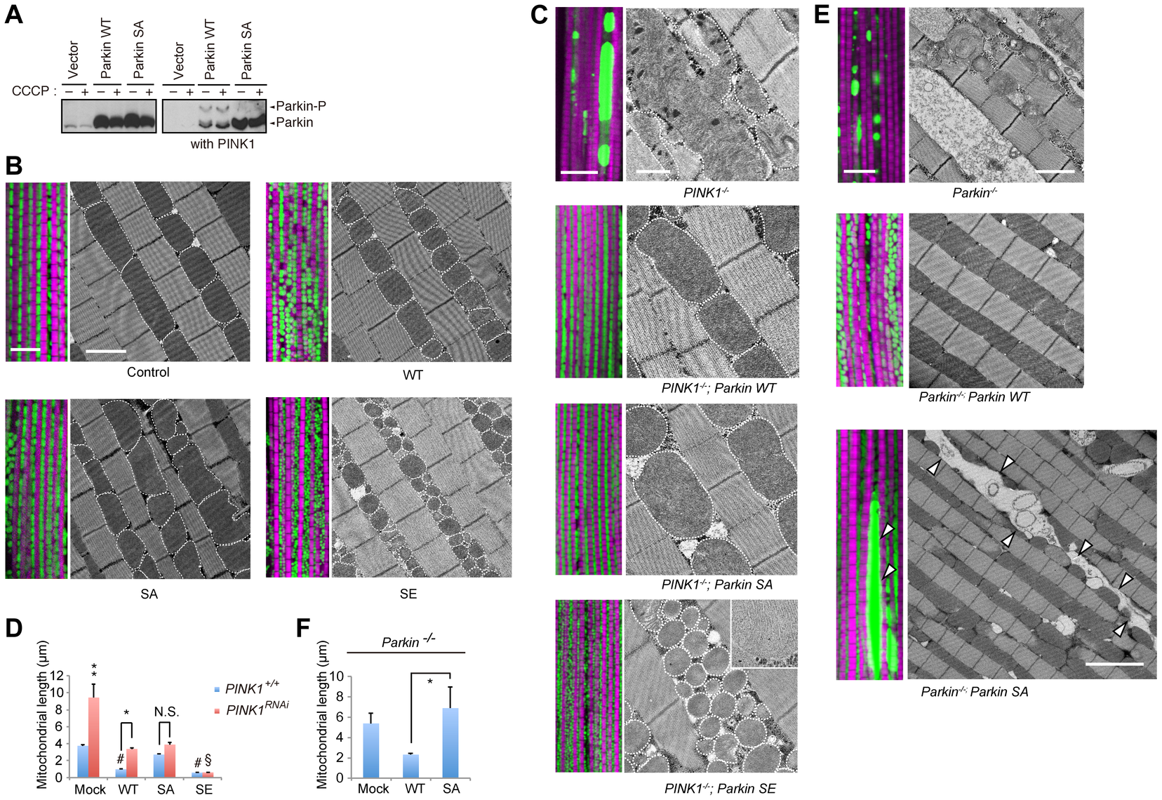 Phosphorylation of the Parkin Ubl domain regulates mitochondrial morphology.