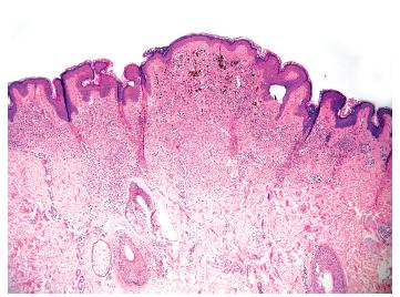 Obr. 1b. V horní polovině névu je oblast v koriu tvořená více pigmentovanými melanocyty