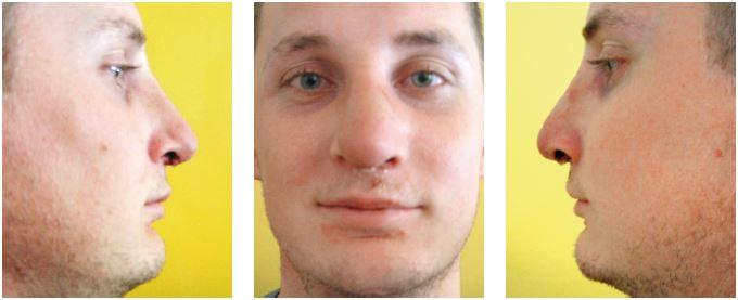 Stav po augmentácii alárnych chrupiek podľa obr. 14. Skorý pooperačný výsledok.