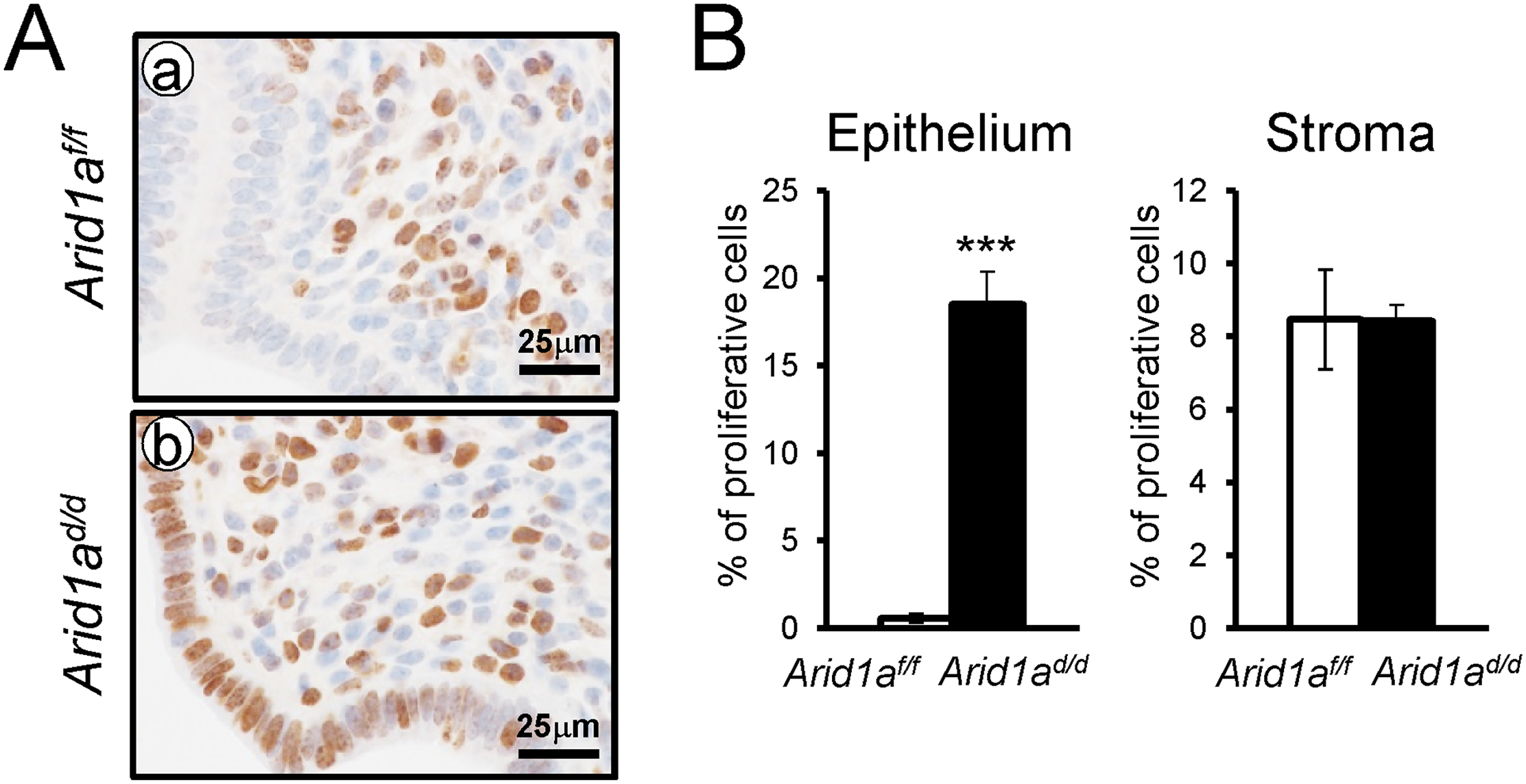 The epithelial proliferation is highly increased in <i>Arid1a</i><sup><i>d/d</i></sup> mice.