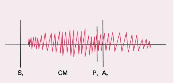 Kontinuální šelest během systoly a diastoly. Druhá ozva může být paradoxně rozštěpena.