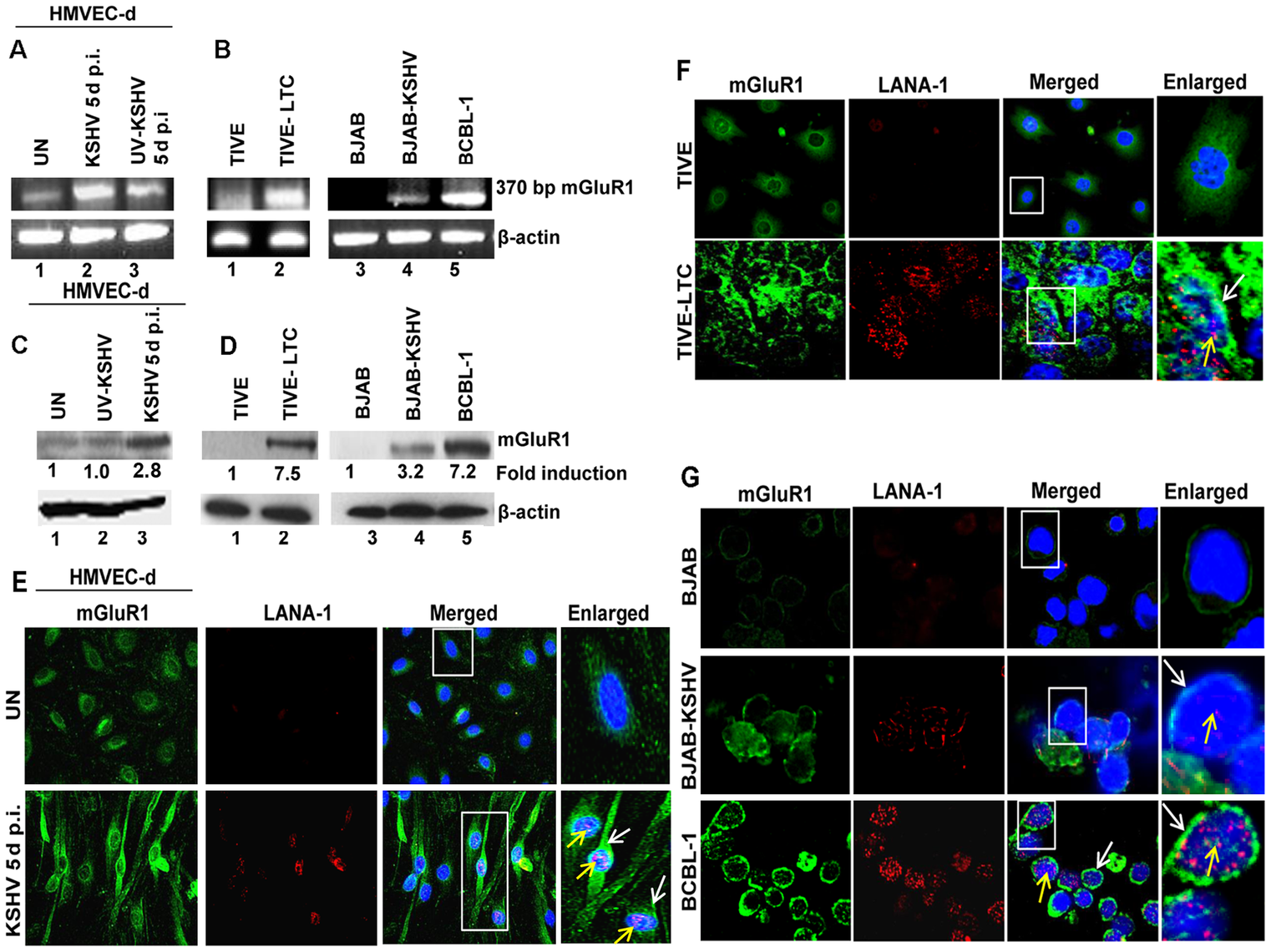 mGluR1 expression is upregulated in KSHV infected cells.
