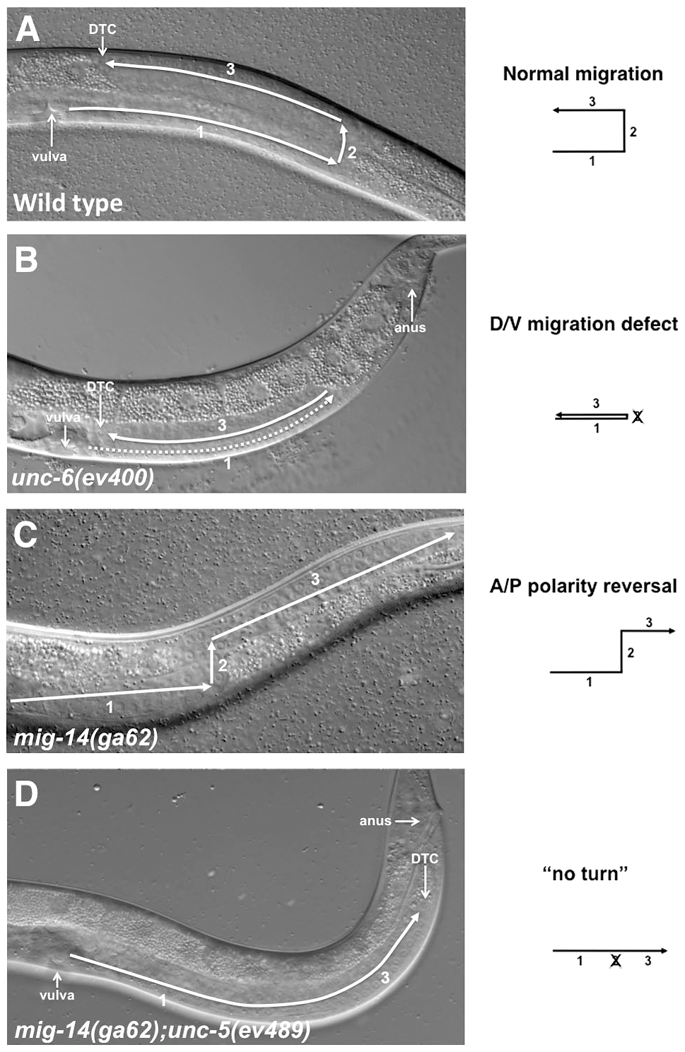 Netrin signaling components and Wntless are involved in guiding DTC migrations.