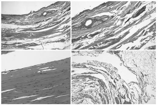 Fig. 3. Images from case 1, showing coagulative necrosis of all layers, including epidermis and dermis (top), hypodermis (bottom right) and striated muscle (bottom left). Sebaceous glands were also necrotic at this level.
