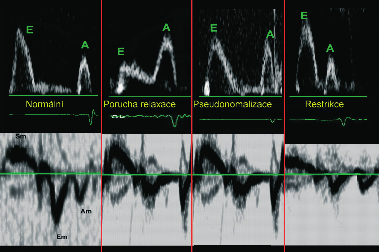 Schematické využití tkáňového dopplerovského záznamu pohybu mitrálního anulu – u všech abnormálních typů plnění zůstává časná relaxační vlna Em redukována.