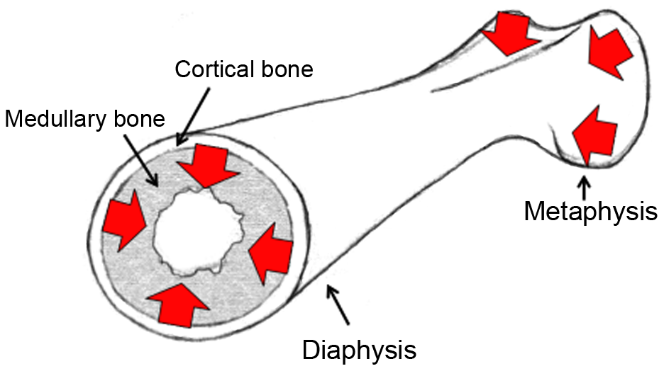 Cartoon of a female femoral bone.