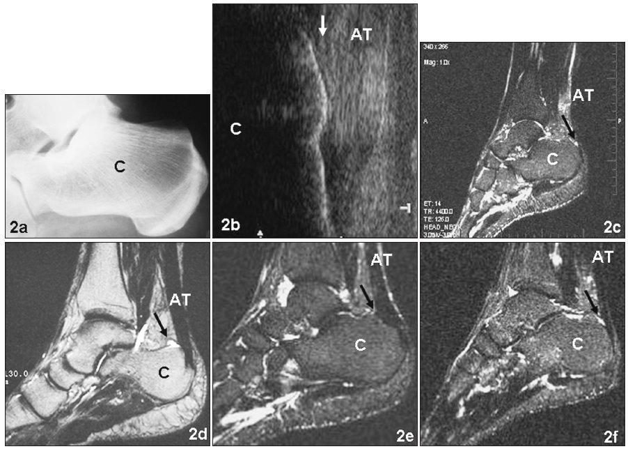a. RTG snímek pravé patní kosti zdravého jedince (kazuistika a) v boční projekci b. Ultrasonografie stejné paty téhož pacienta jako na obrázku 2a. Mírná plantární flexe. Šipka označuje oblast předpokládané zdravé RB c. MR stejné oblasti téhož pacienta jako na obrázku 2b. Šipka označuje místo vyššího signálu v oblasti RB d. MR paty pacienta s diagnózou retrokalkaneární burzitídy (kazuistika b). Šipka označuje prostor patologicky rozšířené burzy do tvaru frygické čapky e. MR paty pacienta po chirurgickém odstranění RB (kazuistika c). Šipka označuje místo uložení původní burzy f. MR paty pacienta 1 týden po distorzi hlezenního kloubu (kazuistika d). Vyšší signál v oblasti RB je označen šipkou Fig. 2a. Lateral X-ray image of the right calcaneus of a healthy 36-year-old individual (cross country ski-marathon runner – case report a) b. Ultrasonography of the heel region (in mild plantar flexion) of the same patient as in the Fig. 2a. The arrow designates the region of the healthy RB localization c. MR image of the right foot of the same patient as in the Fig. 2a and 2b. The arrow designates a higher signal in the region of the RB d. MR image of the 58-year-old patient suffering on the retrocalcaneal bursitis (case report b). The arrow designates the space of pathologically dilated RB in a shape of a Phrygi helmet e. MR image of a 52-year-old patient (10 years after the surgical excision of RB for the diagnosis of chronical retrocalcaneal bursitis – case report c – cross country and marathon runner). The arrow designates the point of the originally placed RB f. MR image of a 23-year-old patient (one week after the ankle joint distorsion – case report d – non sporting medical student). The arrow designates a higher signal in the region of normal RB