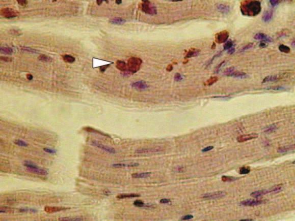 TUNEL pozitivní jádro kardiomyocytu.