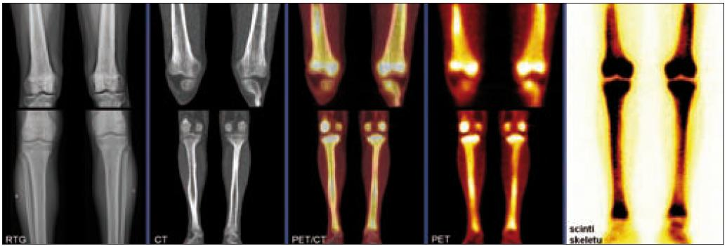 Postižení kostí dolních končetin u pacienta s Erdheimovou-Chesterovou chorobou, zobrazení pomocí konvenční radiografie (RTG), výpočetní tomografie (CT), pozitronové emisní tomografie (PET), hybridního PET/CT vyšetření a klasické kostní scintigrafie. Na RTG i CT je patrné oboustranné osteosklerotické postižení femorů a bércových kostí, které vykazuje patologický hypermetabolizmus glukózy na PET i zvýšenou akumulaci radiofarmaka (technecium pyrofosfátu) na scintigrafi i skeletu.