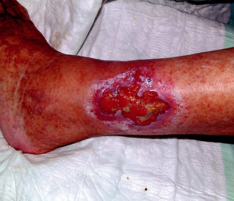 Infikované ulcerace bérců dolních končetin.