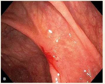 Endoskopický obraz hojícího se vředu na dně céka (A) a v ascendentu za 6 týdnů od krvácivé příhody (B).