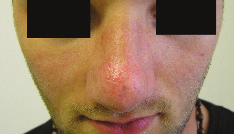 Fig. 4. Nasal dorsum before /A/ and after /B/ the operation