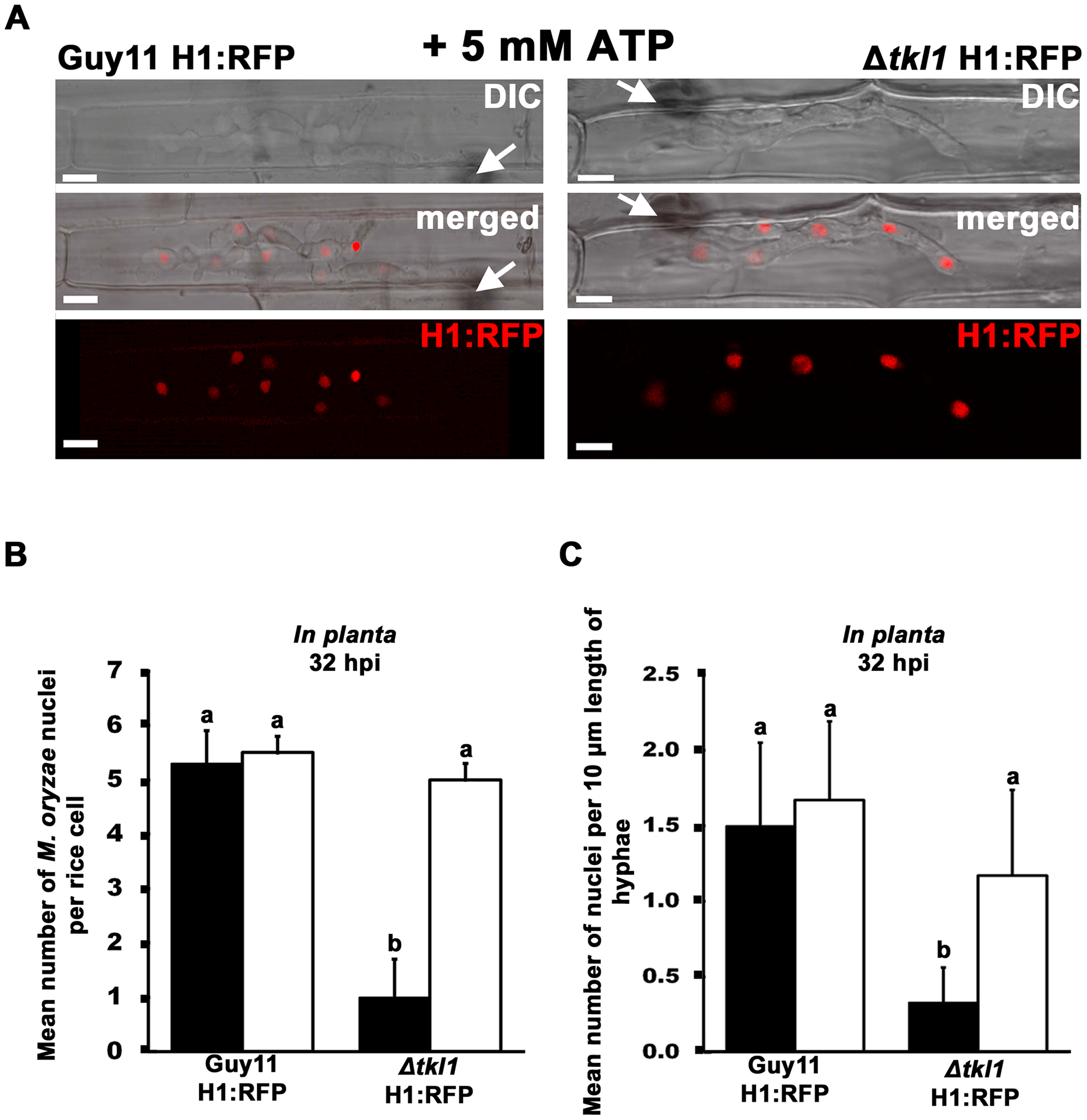 Mitotic delay is remediated <i>in planta</i> by treating Δ<i>tkl1</i> H1:RFP mutant strains with exogenous ATP.