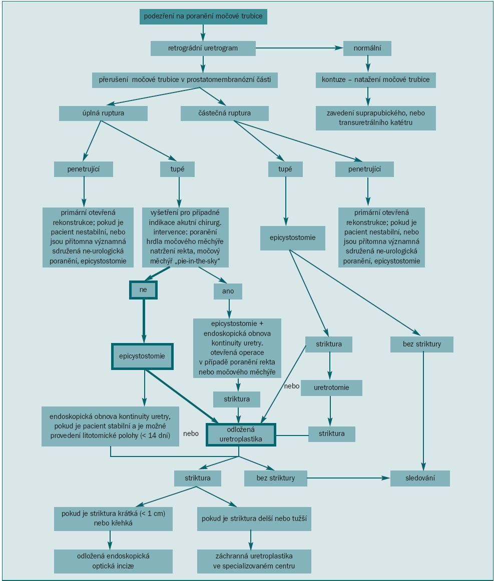 Diagnostický postup při léčbě močové trubice.