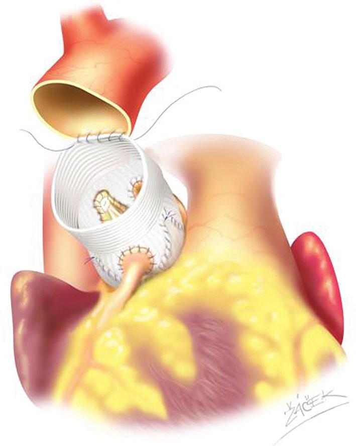 Schéma reimplantace aortální chlopně podle Davida.