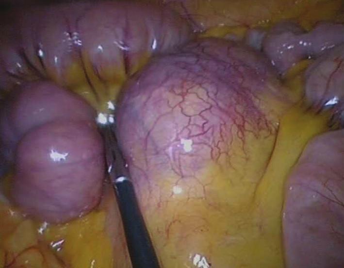 Nádor mezenteria s bohatou vaskularizací Fig. 4: Mesenteric tumour with rich vascularization