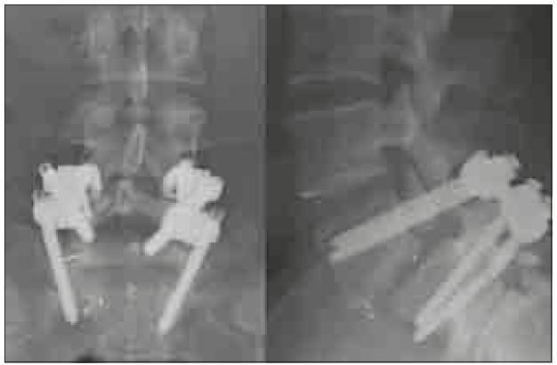 Předozadní a bočná rtg projekce excentricky zavedené TLIF klece, která nezajistila dostatečnou stabilitu pro vznik symetrické fúze a nedostatečná fúze vedla ke zlomení šroubu. Operace nebyla provedena na pracovištích autorů.
