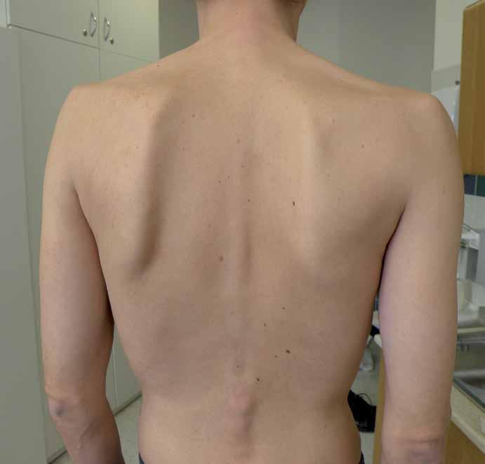 Na snímku je dobře patrná atrofie paraspinálních svalů a asymetrická slabost fixátorů lopatek.