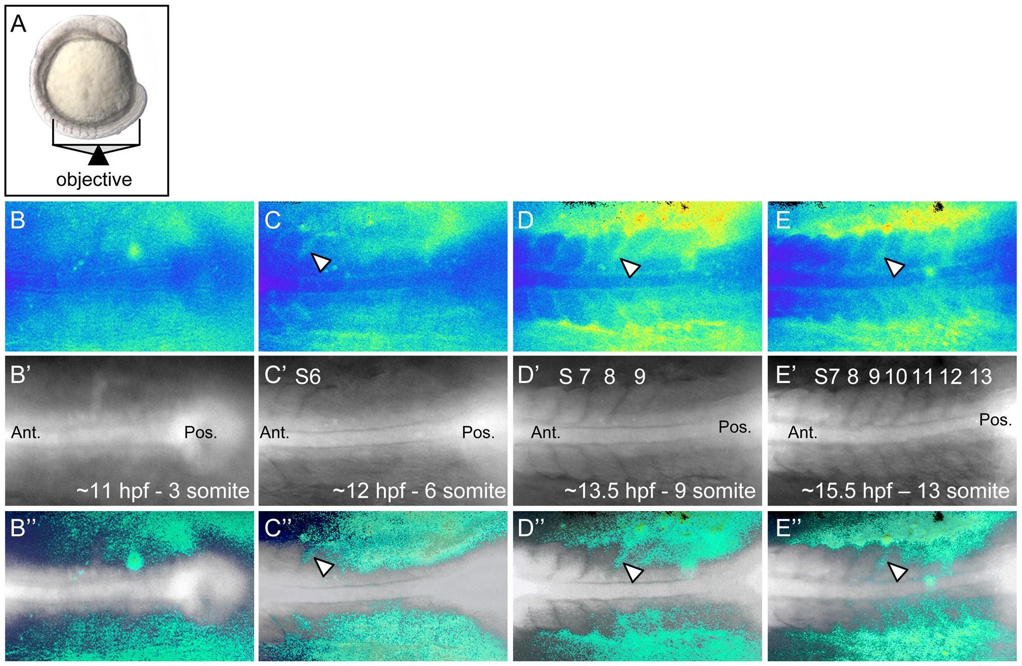 Ca<sup>2+</sup> dynamics during zebrafish somitogenesis.