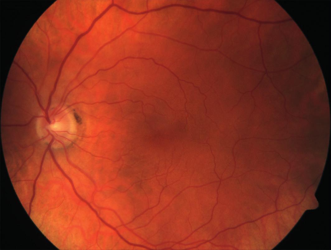 Barevná fotografie očního pozadí po operaci makulární díry