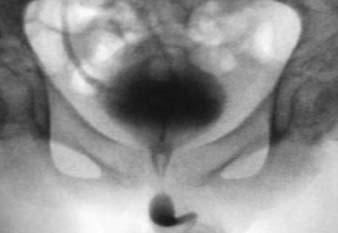 Hyperaktivní neurogenní detruzor o vysokém tlaku s dyssynergií sfinkteru detruzoru a refluxem pravého močovodu.