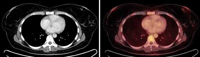 Drobné patologické ložisko pod mediálním okrajem dvorce levého prsu nevykazuje jednoznačně patologickou akumulaci FDG, jeho metabolická aktivita je však vyšší než metabolická aktivita zbytku žlázového tělesa.