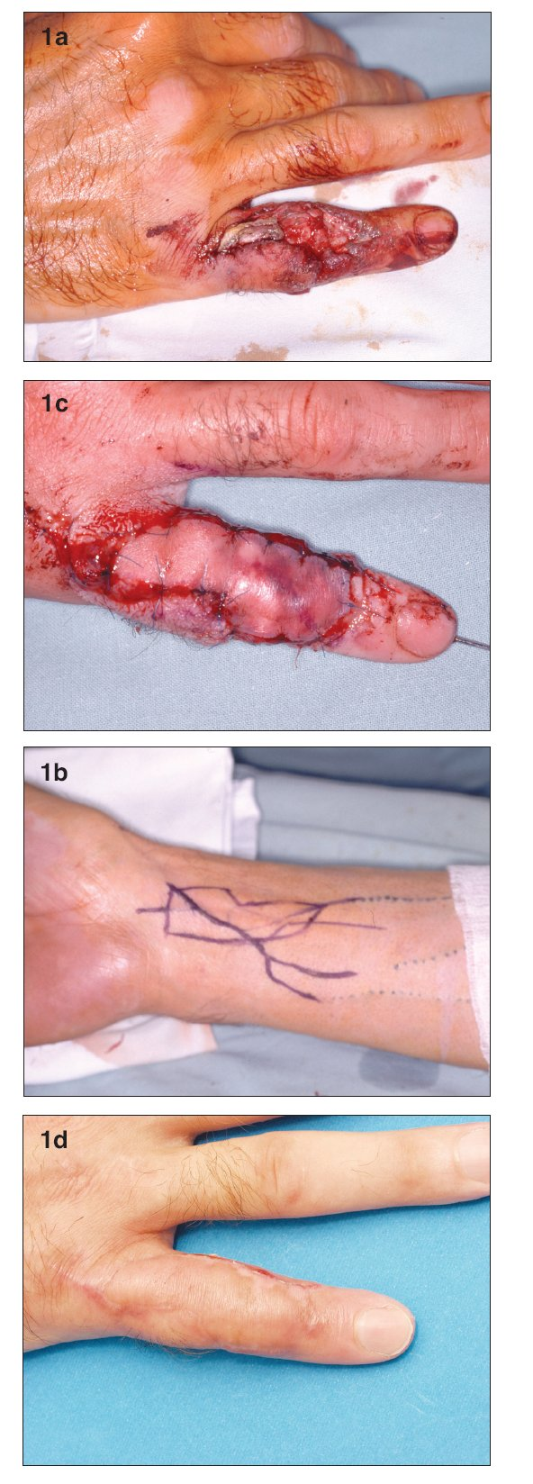 a. Defect with exposure of the proximal interphalangeal joint and loss of extensor tendon