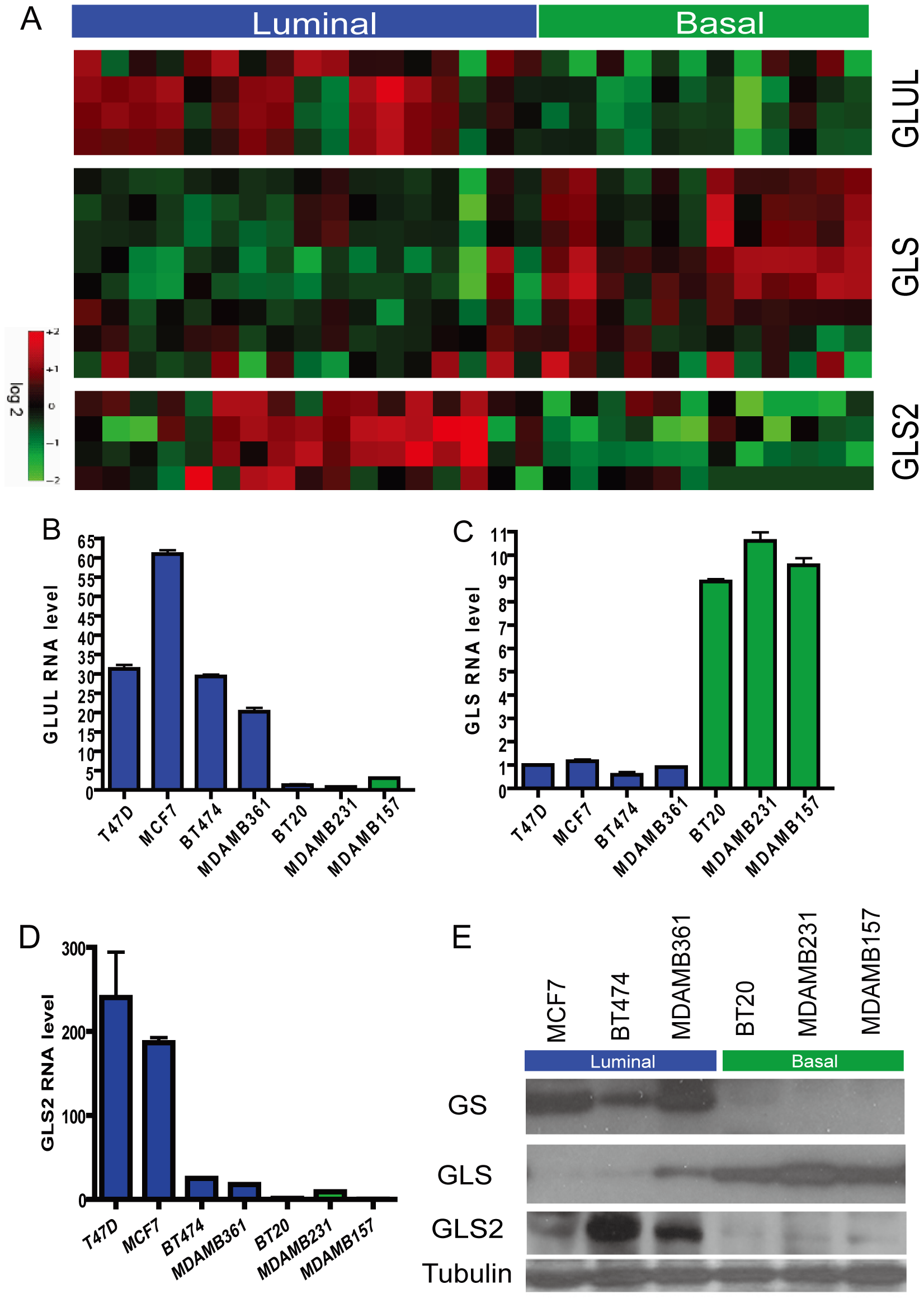 Differential expression of genes encoding glutamine-metabolizing enzymes in the basal and luminal breast cancer cell lines.
