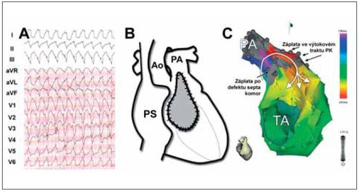 (A) Komorová tachykardie o frekvenci 143/min u pacientky po korekci Fallotovy tetralogie. (B) Schéma umístění ventrikulotomie a záplaty ve výtokovém traktu pravé komory. (C) Elektroanatomická mapa pravé komory v pravé laterální projekci, která ukazuje reentry okruh tachykardie. Kritickou částí okruhu byl svalový můstek tkáně mezi jizvou po ventrikulotomii a jizvou po uzávěru defektu septa komor. Katetrizační ablace vedená napříč tímto kanálem vedla k přerušení arytmie.