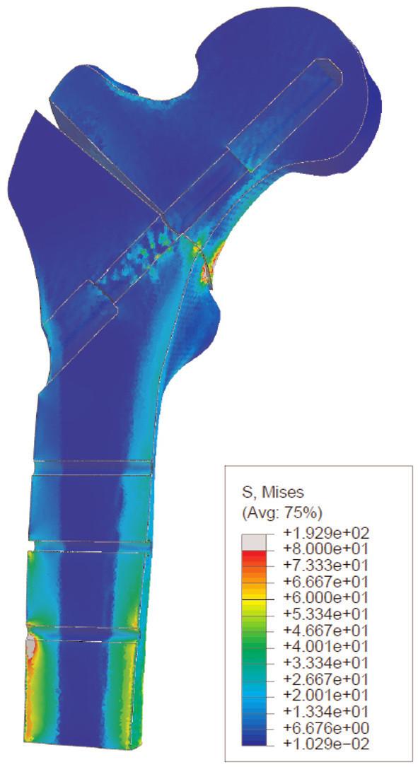 Obr. 3c: Fragment distálního femuru s distribucí napětí, koncentrace napětí v oblasti distálního kortikálního šroubu Fig. 3c: Distal femoral fragment with stress distribution, stress concentration in the area of the distal cortical screw