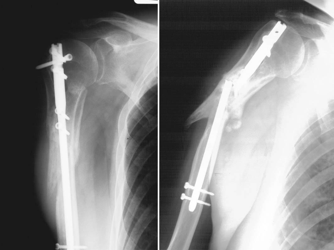 Zlomenina chirurgického krčku humeru zasahující do diafýzy a) stav 6 týdnů po operaci b) diafyzární část zlomeniny není prohojena, zlomenina hřebu – stav 14 měsíců po operaci Pic. 5. Humeral surgical neck fracture , extending into diaphysis a) 6 weeks postsurgically b) the diaphyseal part of the fracture has not healed, the nail rupture- a situation 14 months postsurgically