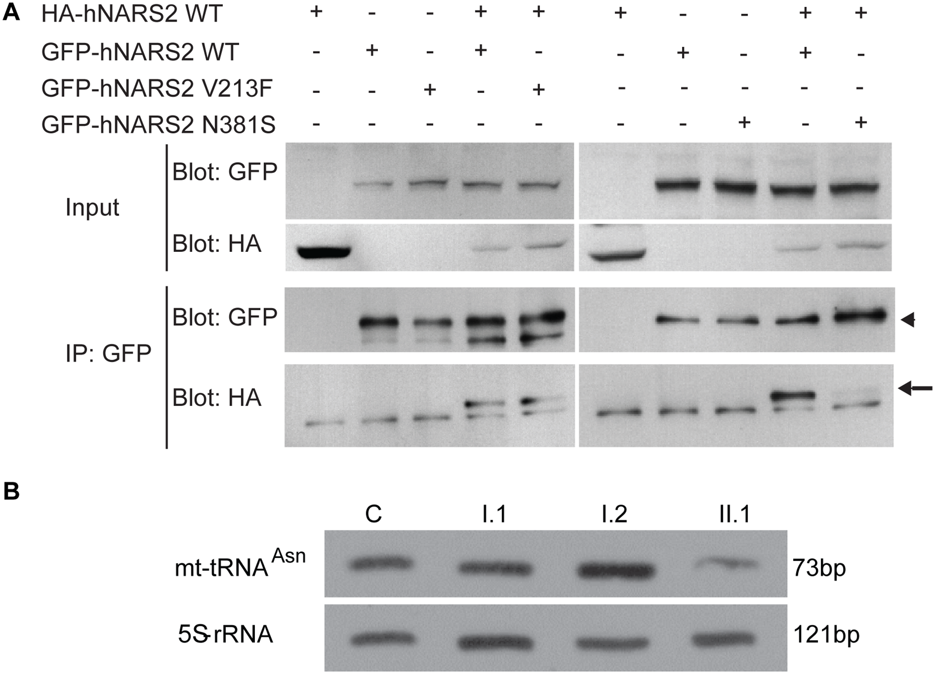 NARS2 homodimerization and RNA level: effect of the p.Val213Phe and p.Asn381Ser mutations.