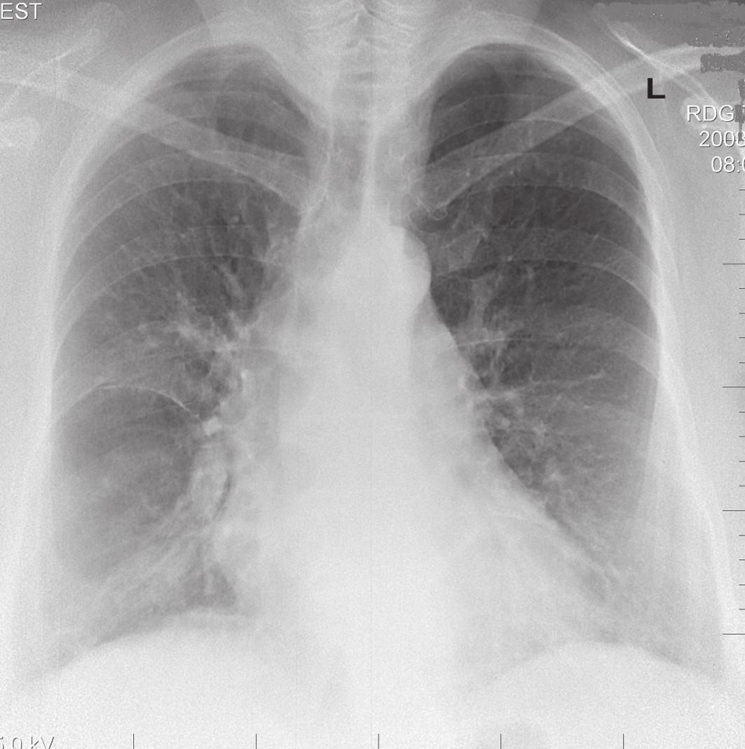 RTG obraz chronického štádia EAA typu pľúc chovateľov holubov u 63-ročného pacienta.