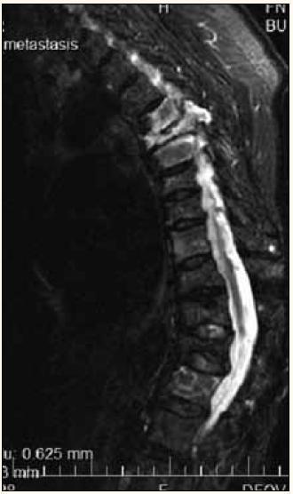 Vícečetné kompresivní fraktury hrudních obratlů při MR vyšetření, hypersignální – světlé jsou při infiltraci myelomem, tmavší jsou při osteoporóze.