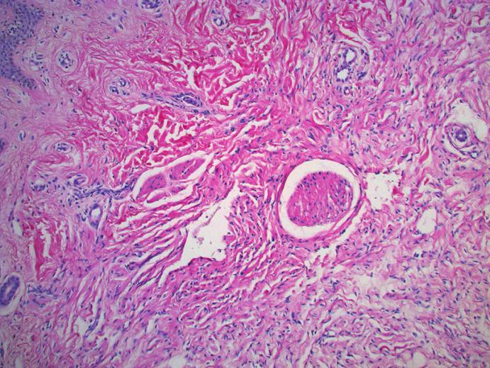 Neurofibrom kolem nervového svazku, tvořený jemnými kolagenovými vlákny a vřetenitými buňkami s přítomností sešikovaných jader (HE, zvětšení 20krát)