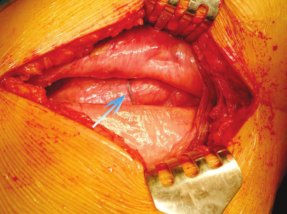 Peroperačný nález – defekt s nálezom uvoľneného perikostálneho stehu v pleurálnej dutine