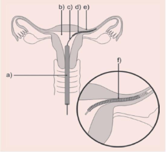 Zavádění implantátu Essure