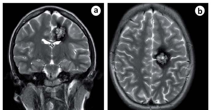 Obr. 5a, b) MR u pacientky s kavernomem v centrální krajině.