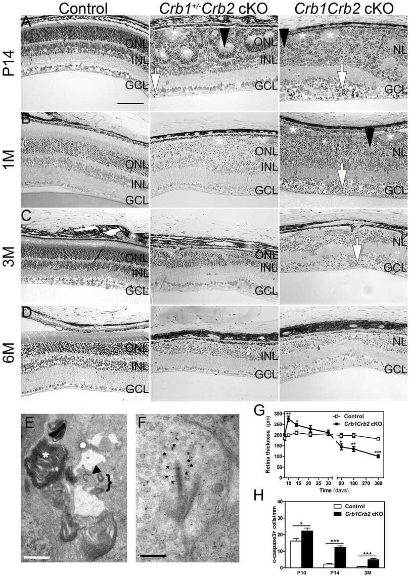 Abnormal layering in <i>Crb1Crb2</i> cKO retinas.