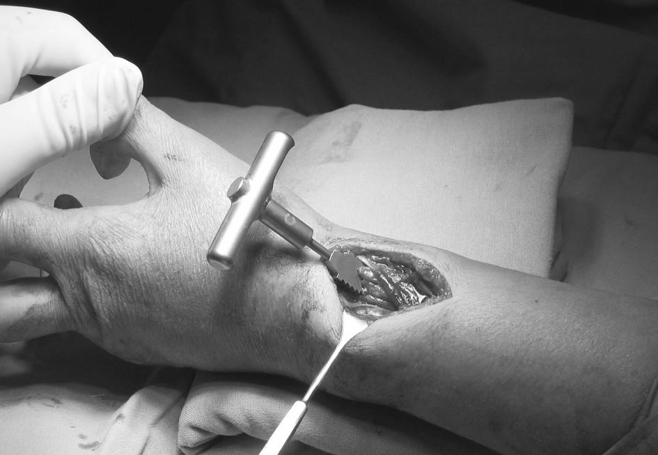 Operační přístup po zavedení rašple Fig. 2. Surgical approach following introduction of a rasp