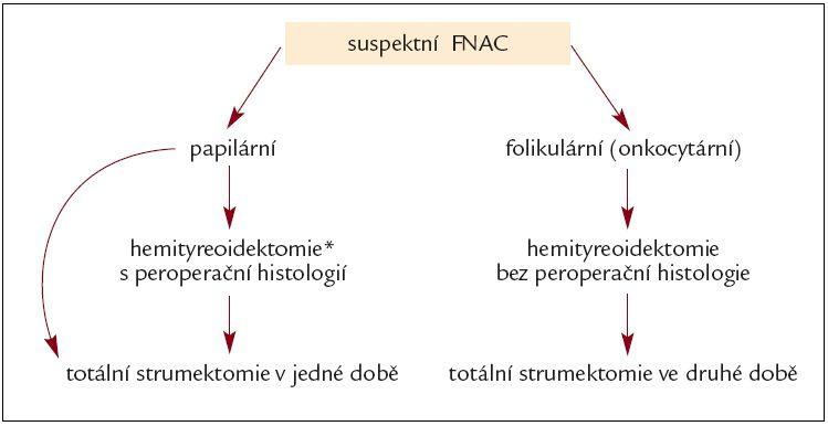 Algoritmus klinického postupu při suspektním výsledku FNAC.