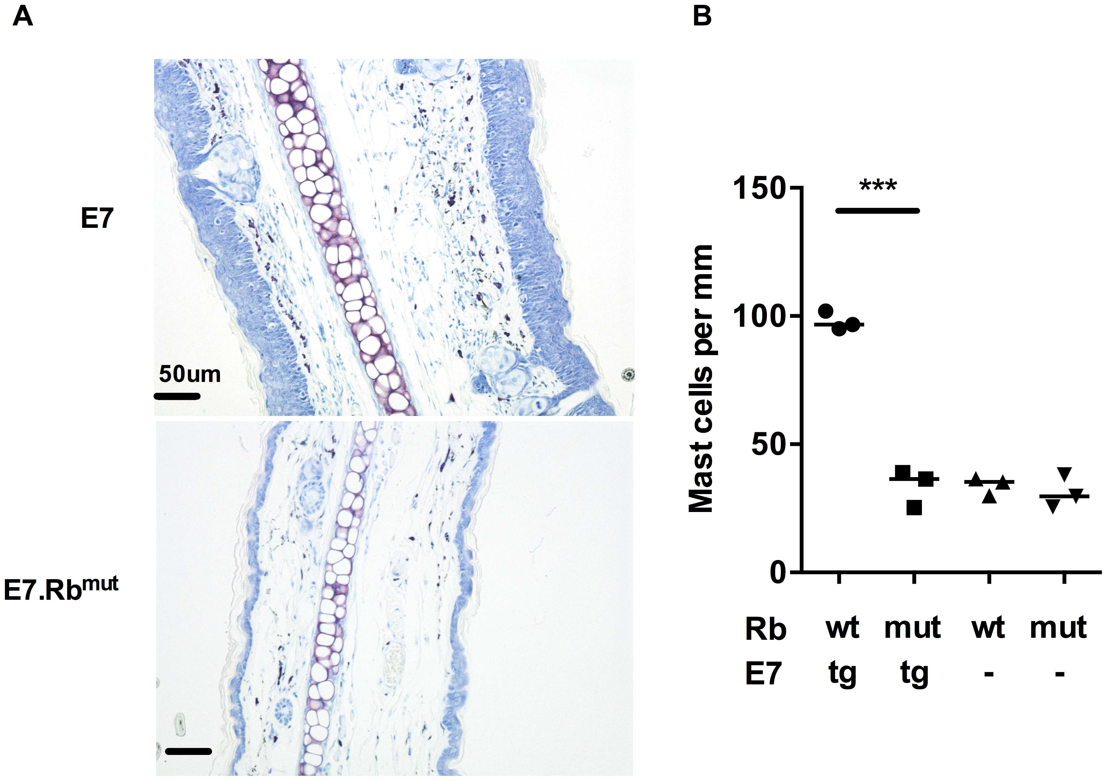 MC infiltration in ear skin is dependent on E7 hyperplasia.