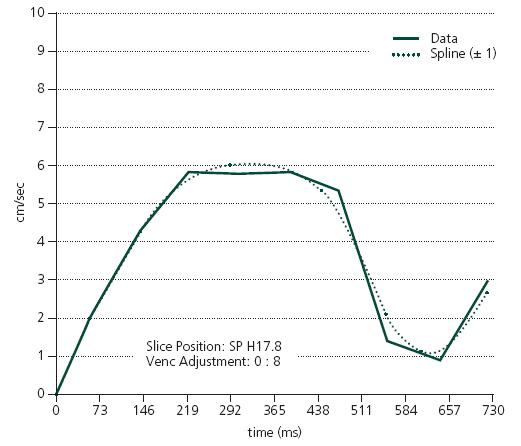 PC-MR. Křivka rychlosti toku likvoru v aqueductus mesencephali.