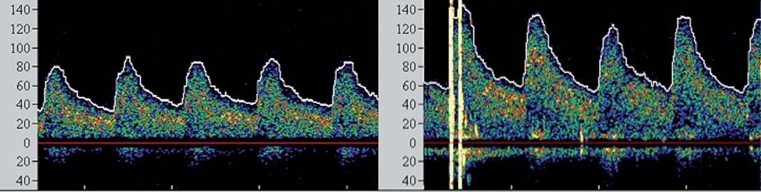 Spektrální křivky vzestupu průtokových rychlostí po intervenci u pacienta v riziku hyperperfuzního syndromu.