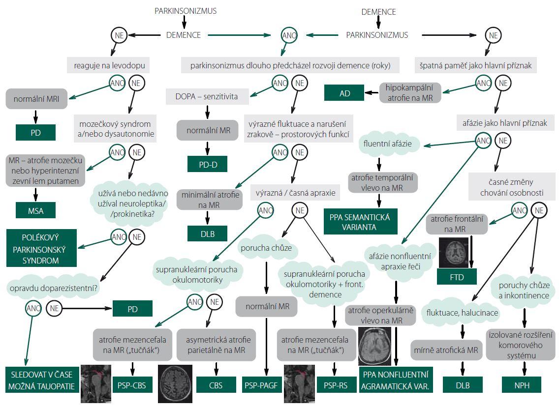 Schéma 1. Algoritmus diagnostického postupu u tauopatií.